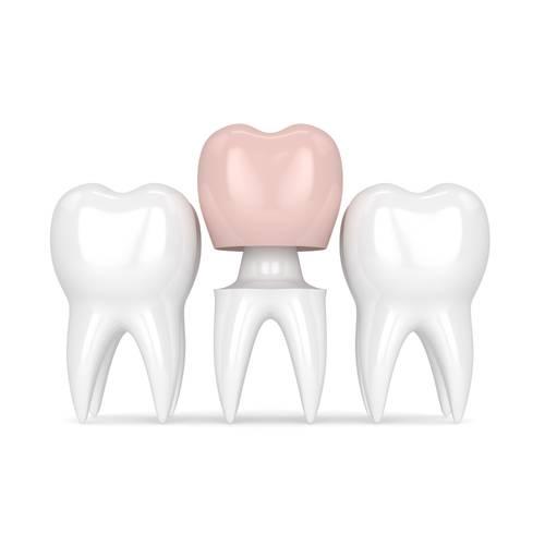 Family Dentist Fox Family Dental Sun City AZ Crowns Services Image