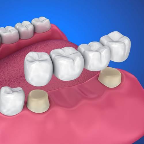 Family Dentist Fox Family Dental Sun City AZ Dentures And Bridges Services Image