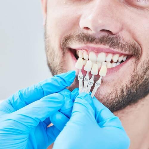 Family Dentist Fox Family Dental Sun City AZ Veneers Services Image
